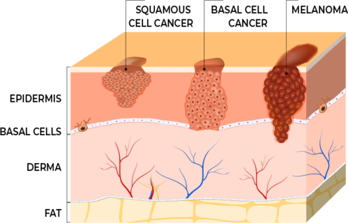 Squamous Cell Carcinoma diagram
