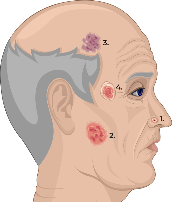 Mans head showing types of BCC Cancer